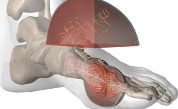 dolor talon acido urico tofos acido urico cristales de acido urico en parcial de orina