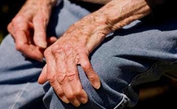 La artrosis y la alimentación