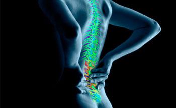 Solución natural para la artrosis